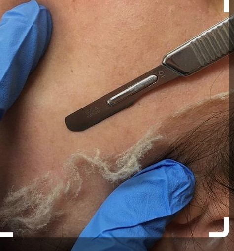 scalpel used for dermaplaning at Unique Skin and Body